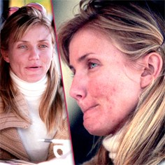 cameron-diaz-talks-acne-problem-sq